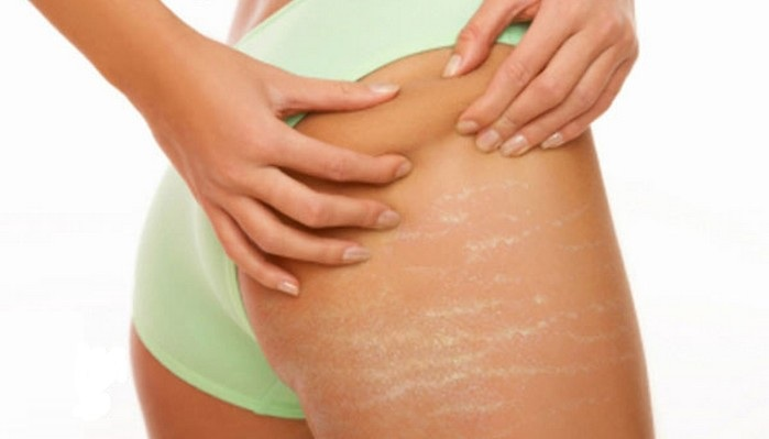 Guide to how to effectively get rid of stretch marks