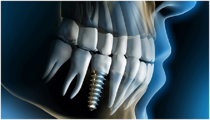 Few Things You Need To Know About Dental Implants