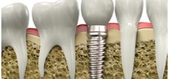 Cover Up the Gaps in Mouth with Contemporary Replacement Teeth – Dental Implants in Melbourne