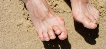 What Causes Hammertoes And How Are They Treated?