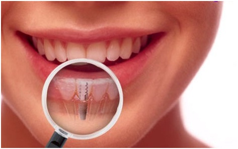 Procedure and Precaution to be taken after Wisdom Teeth Removal Surgery