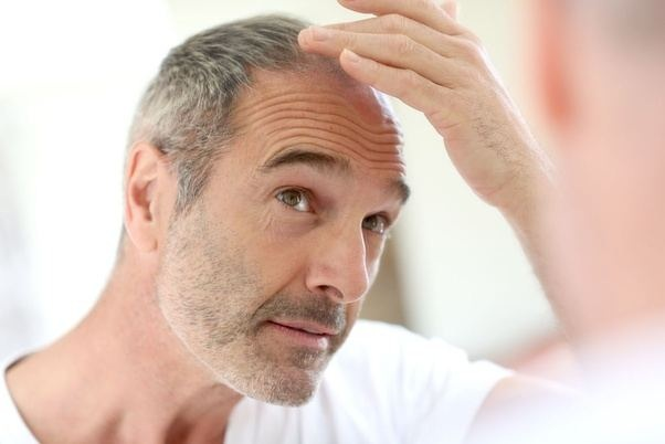 Why more and more people are opting for Ayurvedic treatment for their hair loss problem