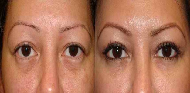 Important Facts About Eyelid Retraction