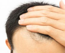 What Are the Side effects of Taking Biotin Pills for Men?