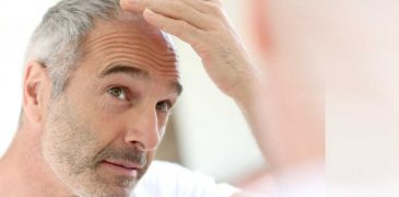 Why should you consider having surgical hair restoration?