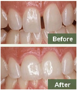 Benefits of Hiring a Cosmetic Dentist