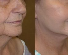 Should You Get A Facelift Procedure?