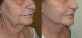 Should You Get A Facelift Procedure?