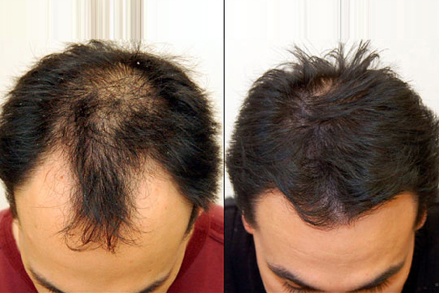 Is PRP My Best Solution for Hair Loss?