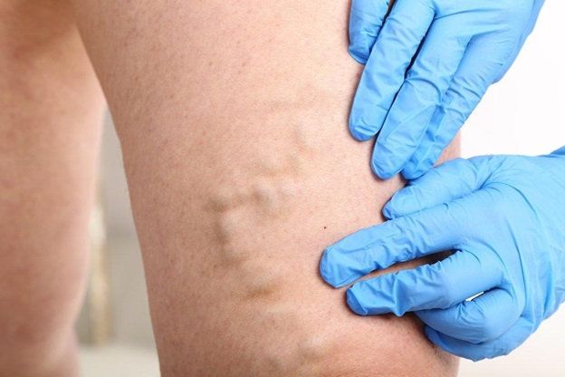 Get the best Endovenous Laser Ablation Treatment at Gilvydis Vein Clinic in Illinois