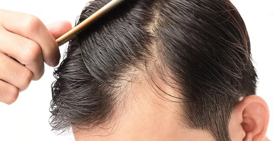What Are The Options For Hair Loss?