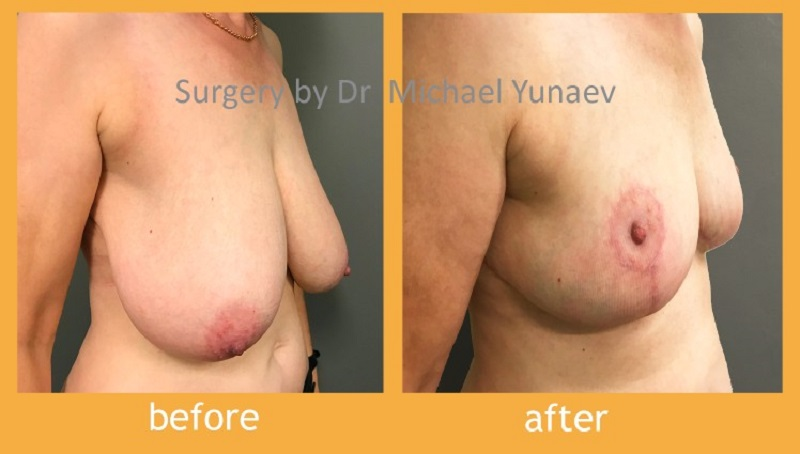 Reduce Or Fix Your Breasts With Easy Procedures