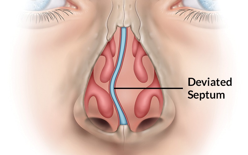 Signs You Might Have a Deviated Nasal Septum