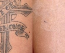 Have a Tattoo Removed Professionally At The Finery New York