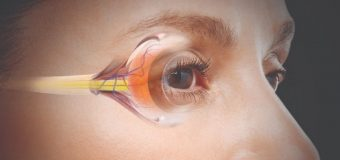 How To Become The Best Cataract Surgery Expert Witness?